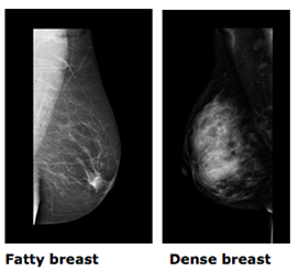Mammographic Density And Screening Breast Health And Awareness Breast Cancer Network Australia